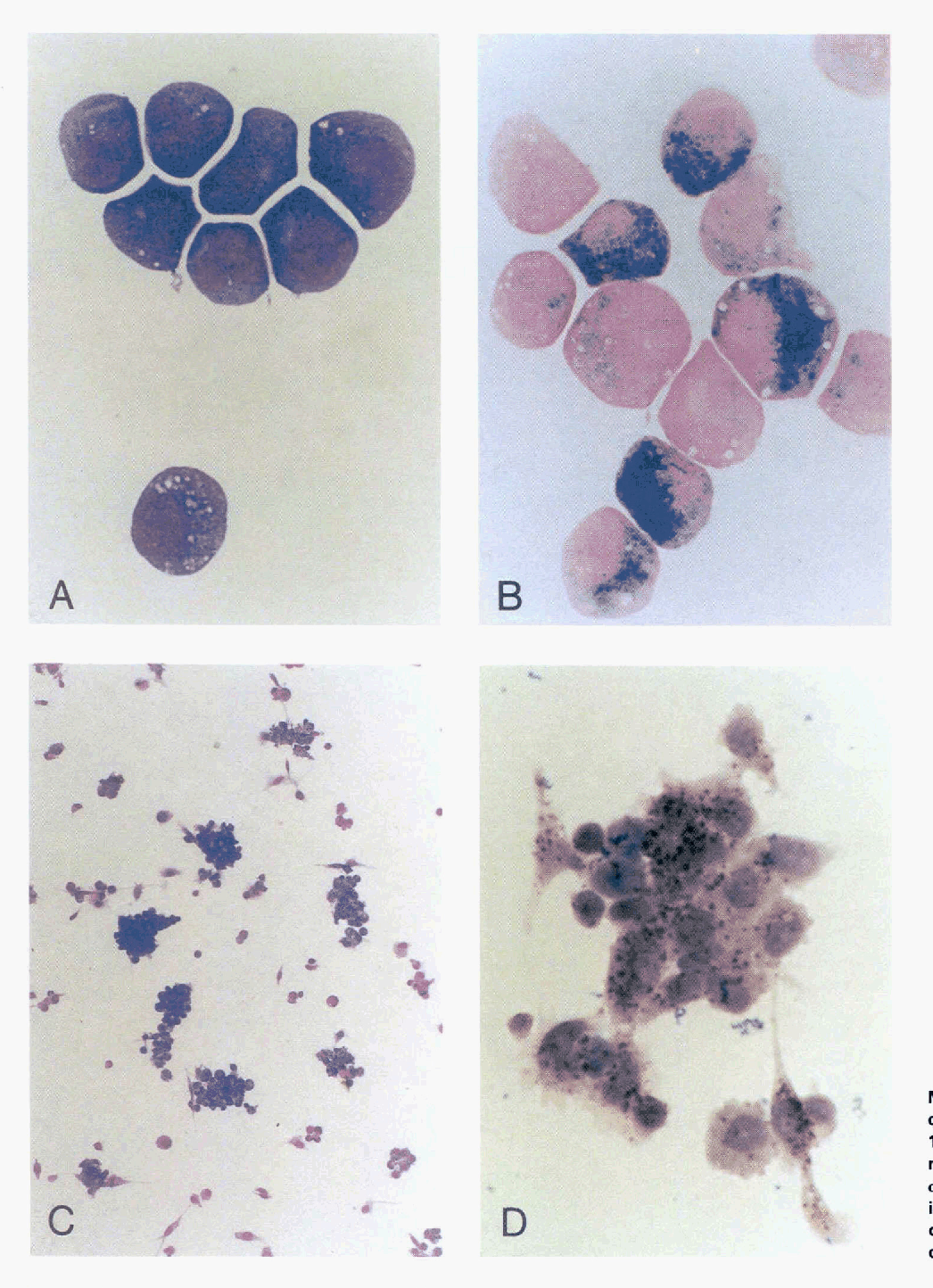 Fig 1. (A) MG staining and (B)