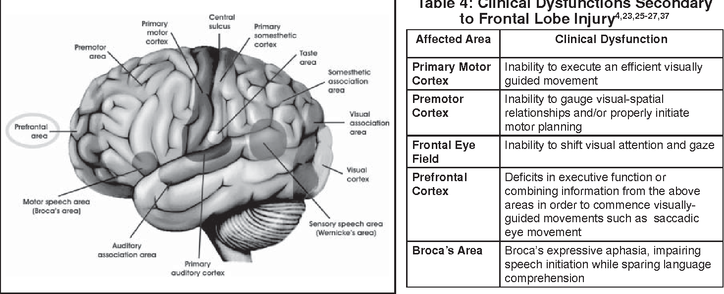 Optometric Management of Visual Sequelae of Frontal Lobe-related ...