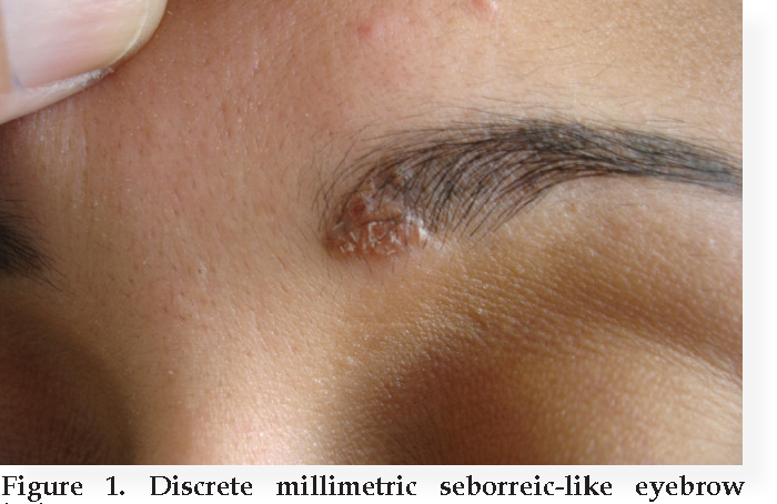 Figure 1 from SARCOIDOSIS MIMICKING SEBORRHEIC DERMATITIS : ANOTHER