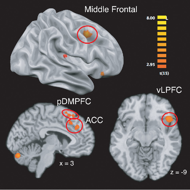 Figure 2. Brain regions more engaged by incongruent, as opposed to congruent, social cues.