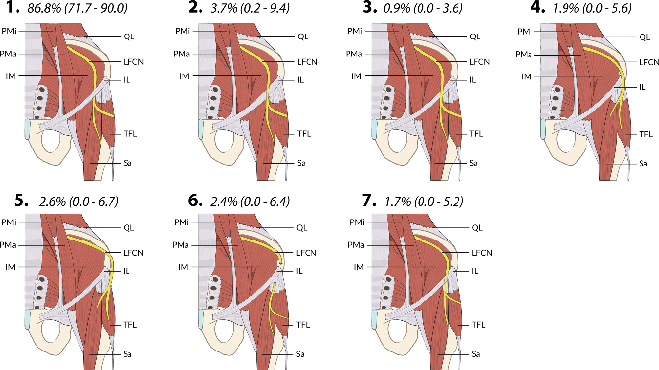The surgical anatomy of the lateral femoral cutaneous nerve in the ...
