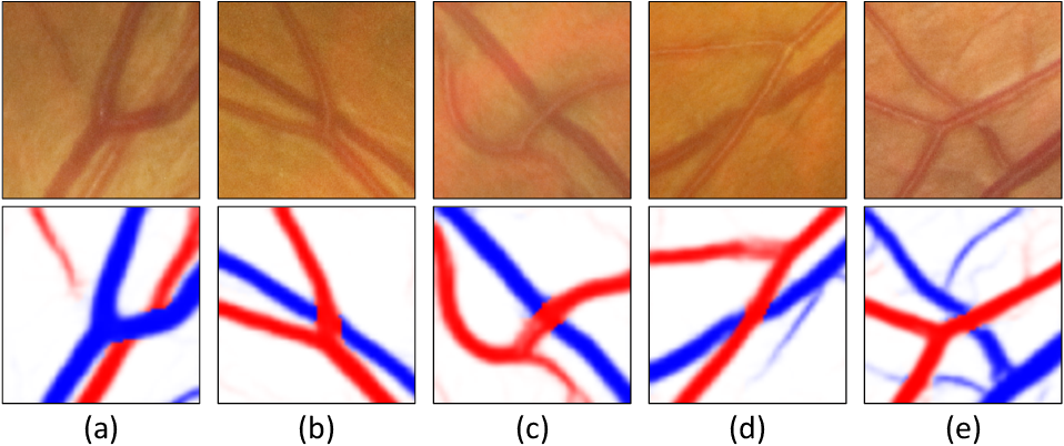 Figure 1 for Grading the Severity of Arteriolosclerosis from Retinal Arterio-venous Crossing Patterns