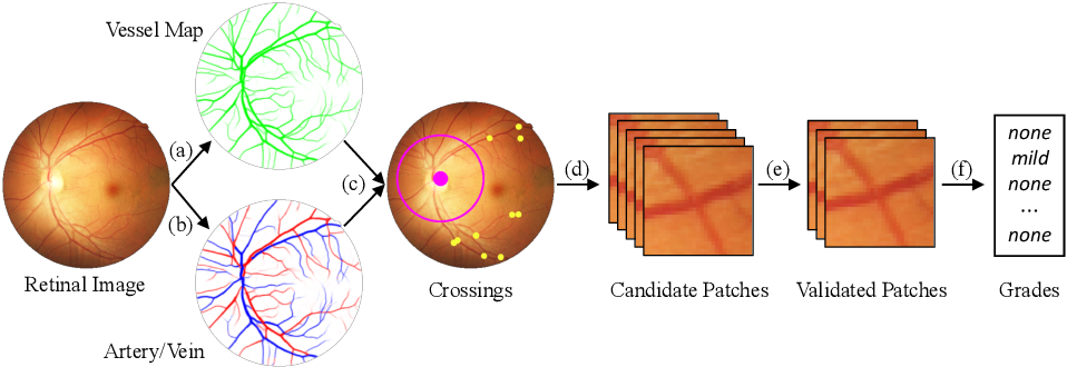 Figure 3 for Grading the Severity of Arteriolosclerosis from Retinal Arterio-venous Crossing Patterns