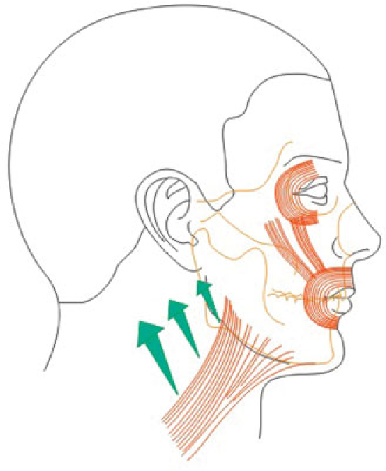 Figure 18 From Management Of The Neck In Thick Skinned Patients