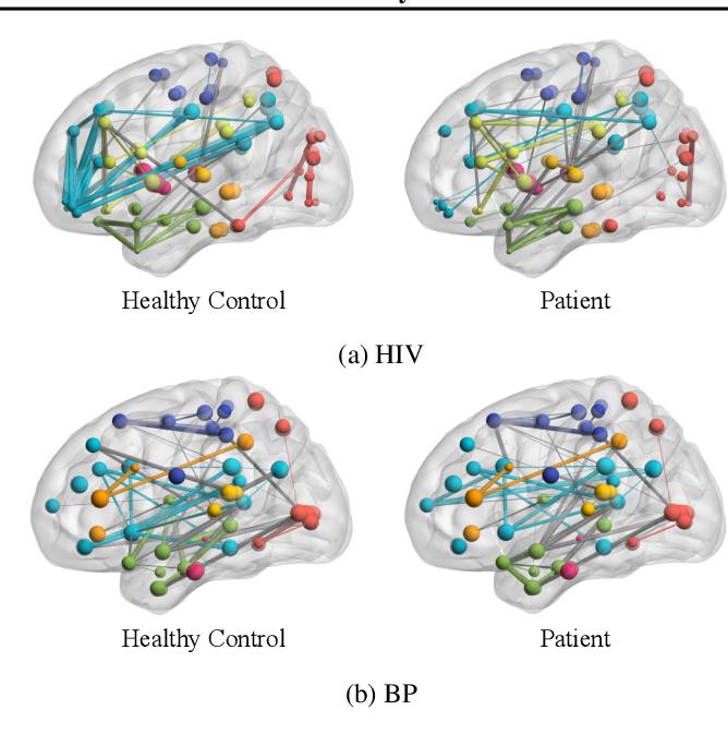 Figure 3 for BrainNNExplainer: An Interpretable Graph Neural Network Framework for Brain Network based Disease Analysis