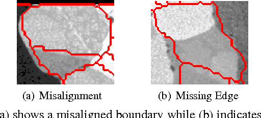 Figure 1 for Coercive Region-level Registration for Multi-modal Images