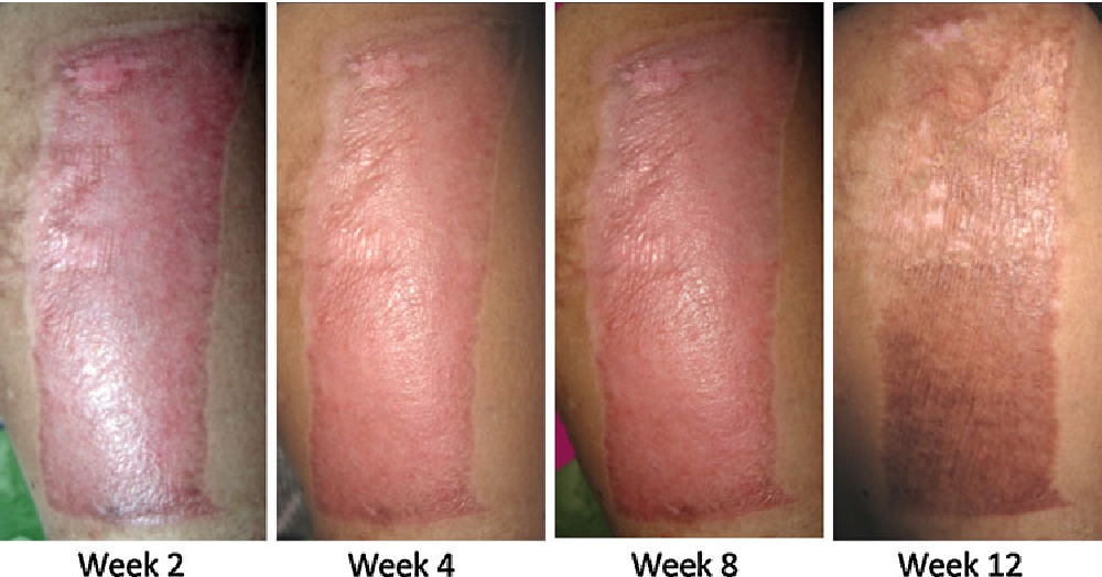 Figure 3 from The Efficacy of Combined Herbal Extracts Gel in