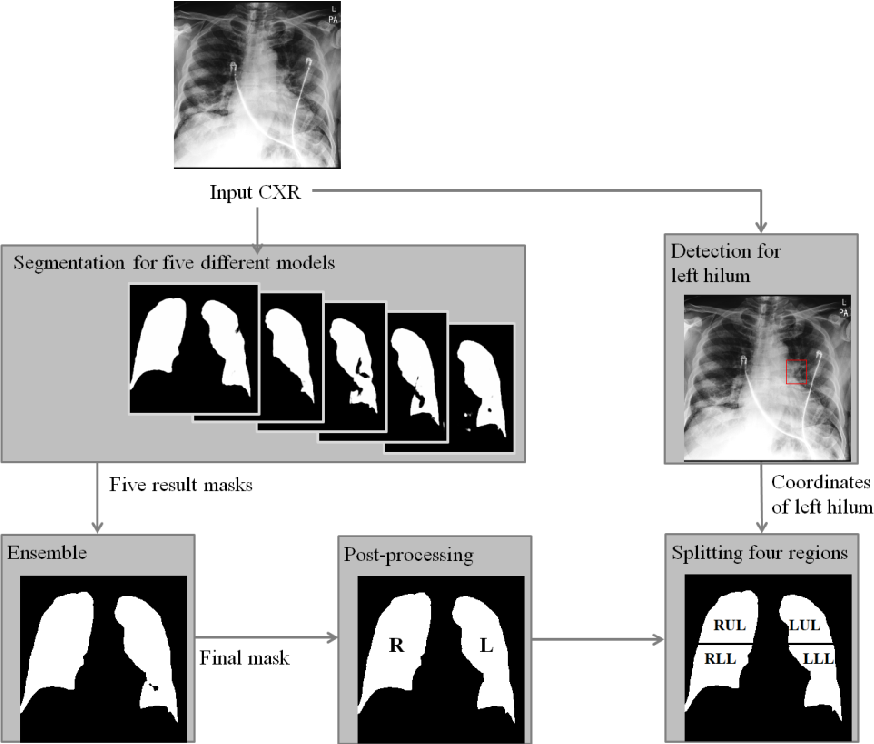 Figure 2 for Deep Learning-based Four-region Lung Segmentation in Chest Radiography for COVID-19 Diagnosis