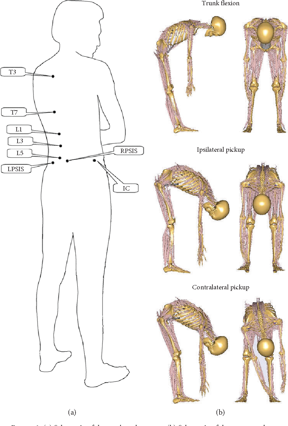 The Effect Of Lumbar Disc Herniation On Spine Loading