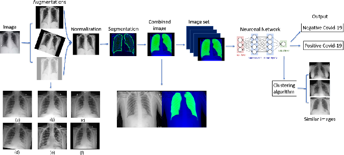 Figure 1 for Point of Care Image Analysis for COVID-19