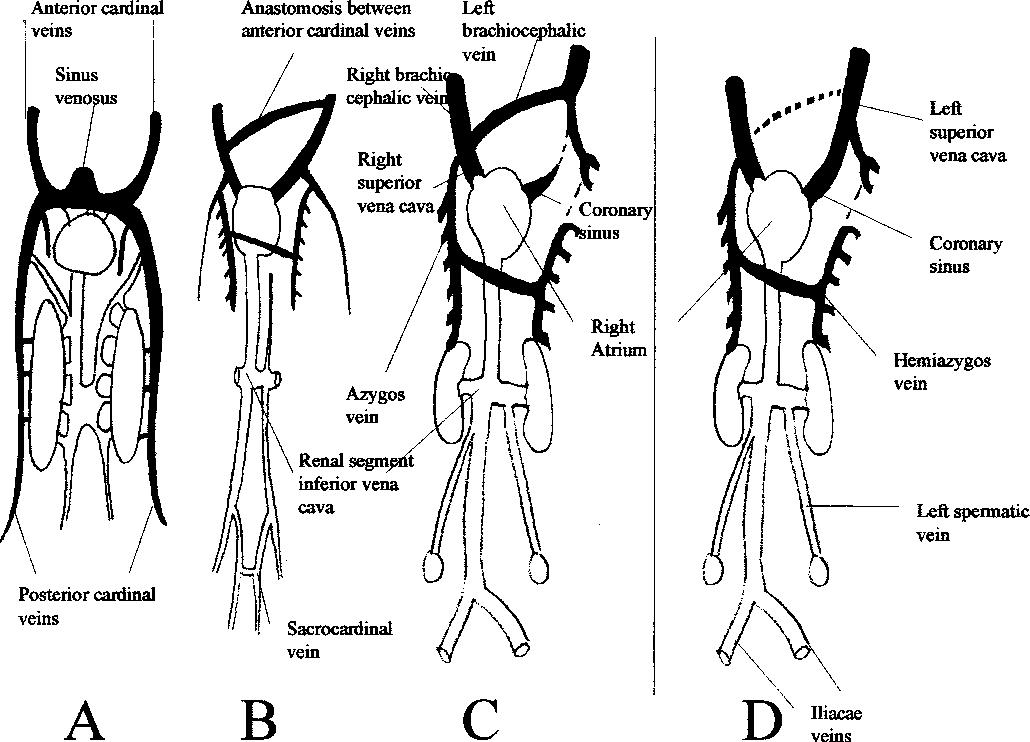 Persistent left superior vena cava: a reason for pseudodisplacement ...