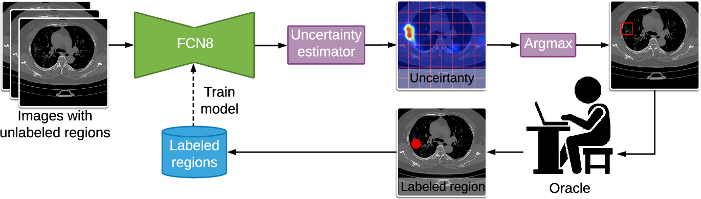 Figure 4 for A Weakly Supervised Region-Based Active Learning Method for COVID-19 Segmentation in CT Images