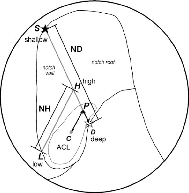 Description Of The Attachment Geometry Of The Anteromedial And