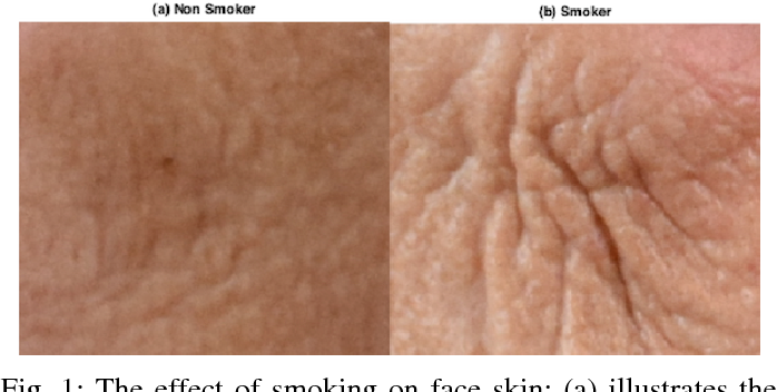 Figure 1 for Automated Assessment of Facial Wrinkling: a case study on the effect of smoking