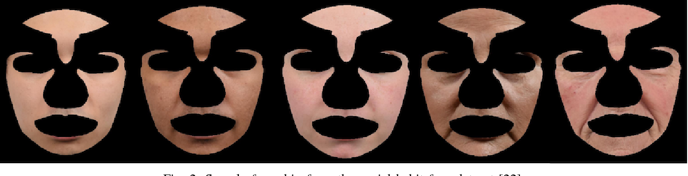 Figure 2 for Automated Assessment of Facial Wrinkling: a case study on the effect of smoking