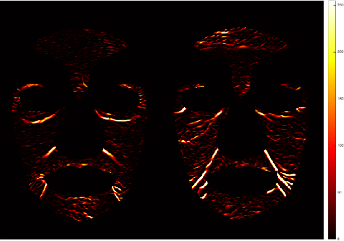Figure 4 for Automated Assessment of Facial Wrinkling: a case study on the effect of smoking
