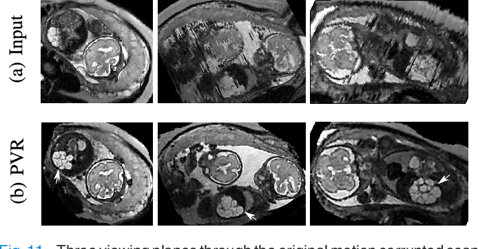 Figure 3 for PVR: Patch-to-Volume Reconstruction for Large Area Motion Correction of Fetal MRI