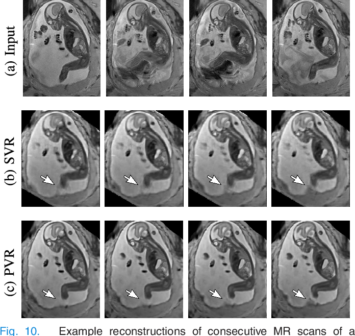 Figure 2 for PVR: Patch-to-Volume Reconstruction for Large Area Motion Correction of Fetal MRI