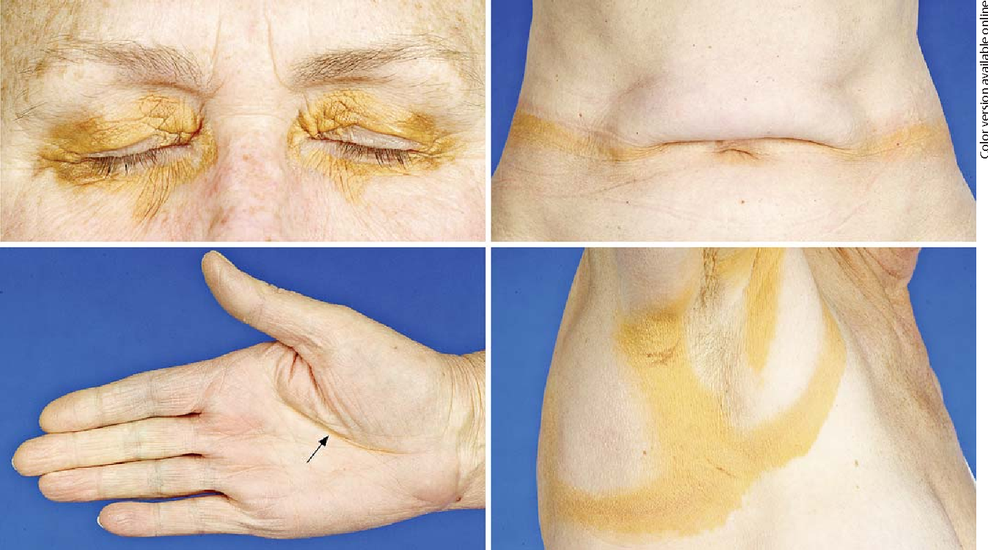 Fig. 1. Skin lesions of DPNX characterized by well-demarcated, yellow to orange macules and plaques. Lesions were observed on the eyelids, in the intertriginous abdominal skin folds, palmar creases (arrow) and in both axillary regions.