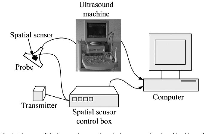 A Novel Breast Ultrasound System For Providing Coronal Images