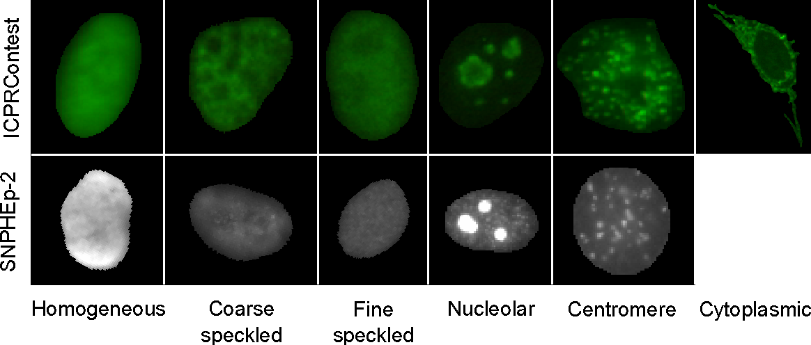 Figure 3 for Automatic Classification of Human Epithelial Type 2 Cell Indirect Immunofluorescence Images using Cell Pyramid Matching