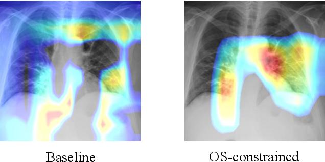 Figure 1 for Interpretable COVID-19 Chest X-Ray Classification via Orthogonality Constraint