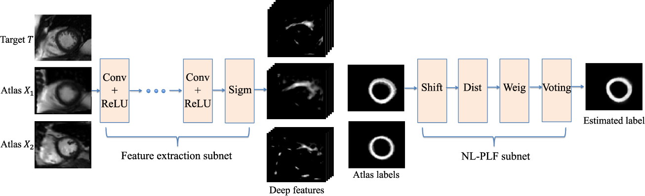 Figure 1 for Neural Multi-Atlas Label Fusion: Application to Cardiac MR Images