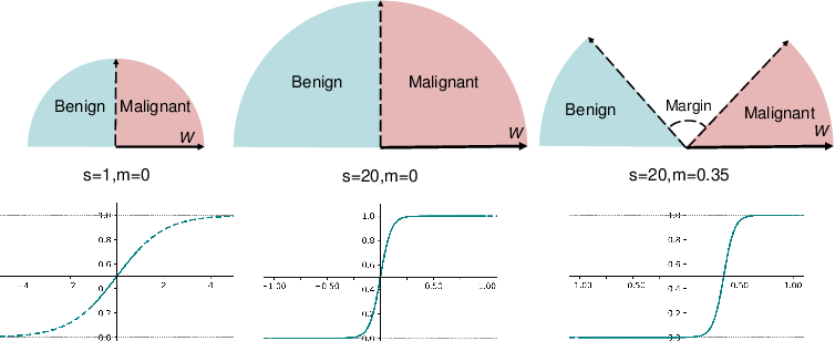 Figure 3 for Deep Angular Embedding and Feature Correlation Attention for Breast MRI Cancer Analysis
