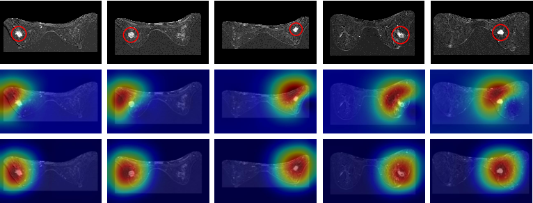 Figure 4 for Deep Angular Embedding and Feature Correlation Attention for Breast MRI Cancer Analysis