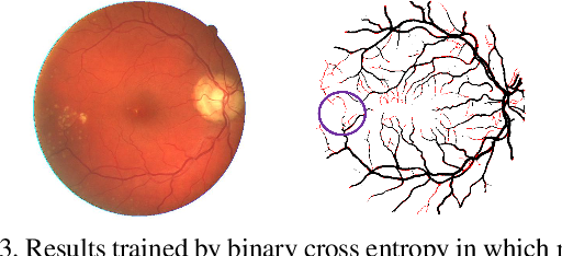 Figure 4 for Connection Sensitive Attention U-NET for Accurate Retinal Vessel Segmentation