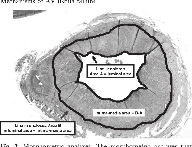 Venous stenosis in a pig arteriovenous fistula model--anatomy ...