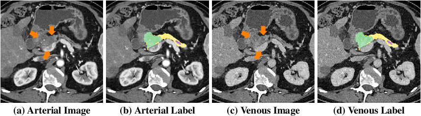 Figure 1 for Hyper-Pairing Network for Multi-Phase Pancreatic Ductal Adenocarcinoma Segmentation