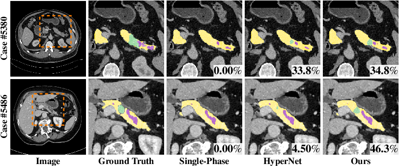 Figure 4 for Hyper-Pairing Network for Multi-Phase Pancreatic Ductal Adenocarcinoma Segmentation