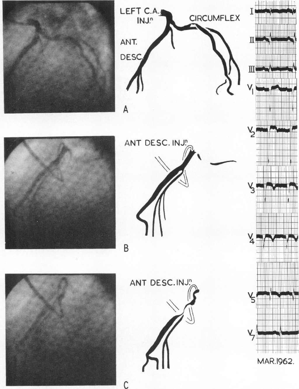 FIG. 6.-Case 15. (A) A frame from a cine film taken during an injection into the left coronary artery.