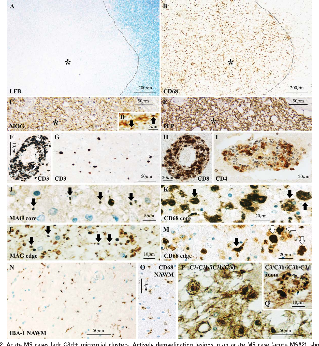 Figure 2 from Complement C3 on microglial clusters in