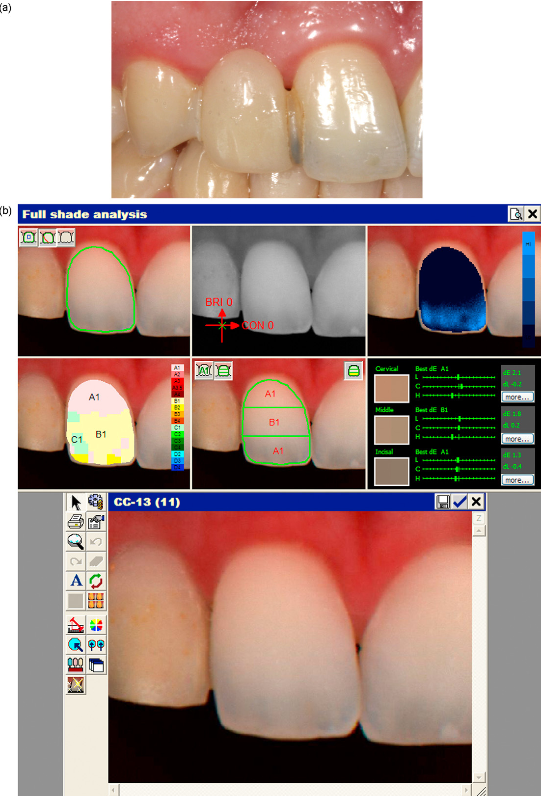 Dental Color Matching Instruments And Systems Review Of Clinical