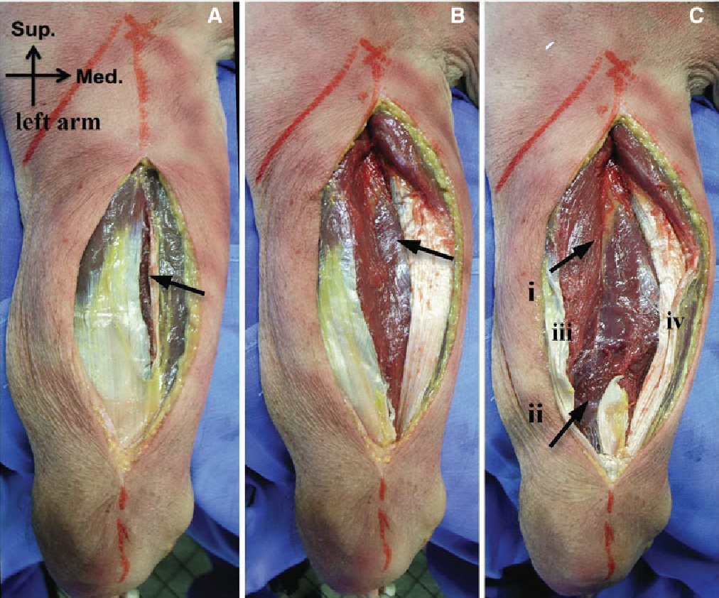 Figure 1 From The Medial Head Of The Triceps Brachii Anatomy And