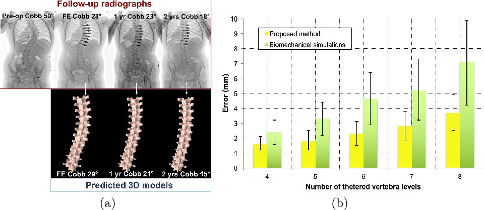 Figure 3 for Spatiotemporal Manifold Prediction Model for Anterior Vertebral Body Growth Modulation Surgery in Idiopathic Scoliosis