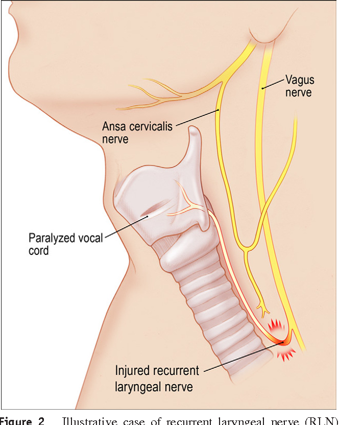 Laryngeal reinnervation for unilateral vocal fold paralysis using ...