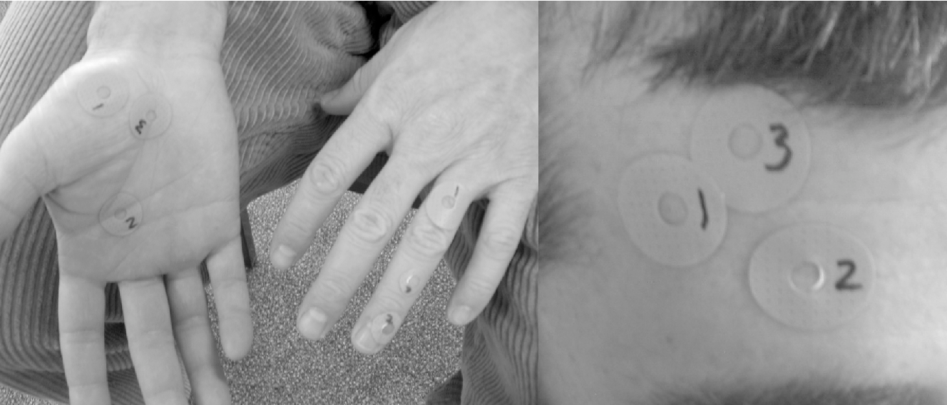 Figure 1 from Electrical skin impedance at acupuncture points