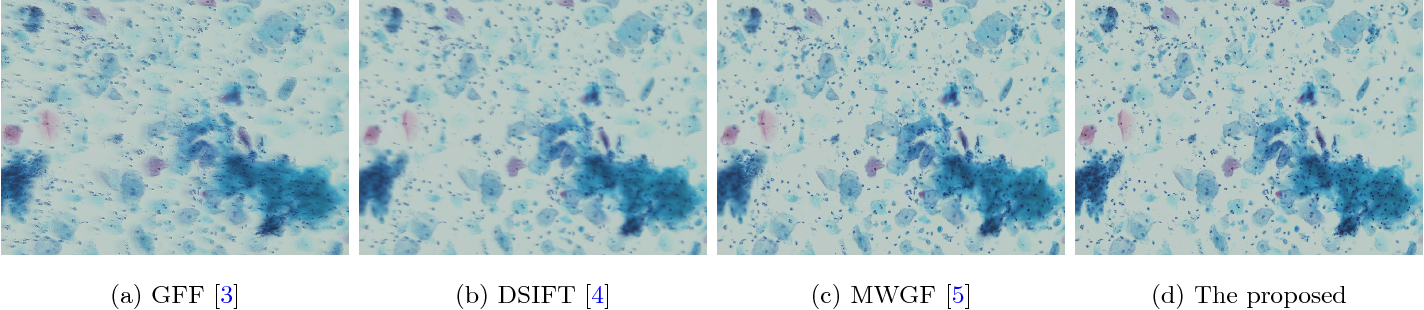 Figure 1 for Efficient Misalignment-Robust Multi-Focus Microscopical Images Fusion