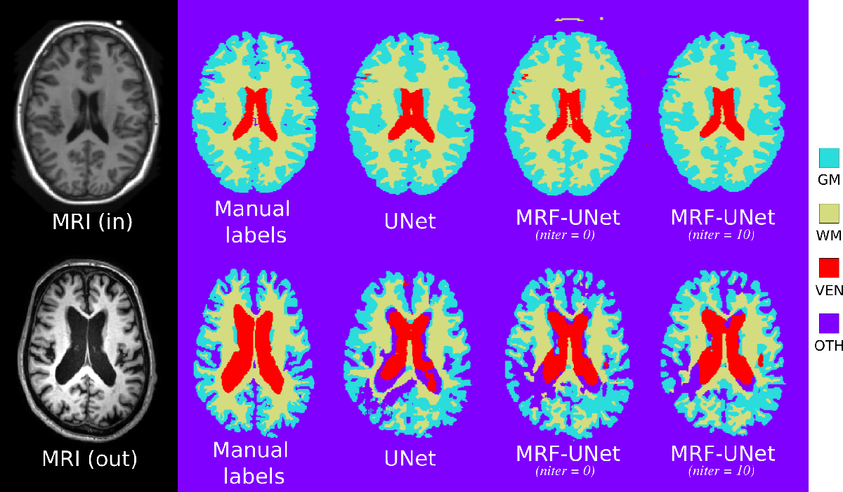 Figure 2 for An MRF-UNet Product of Experts for Image Segmentation