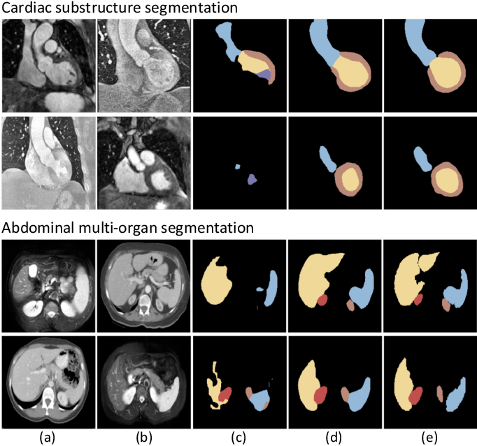 Figure 1 for Unsupervised Bidirectional Cross-Modality Adaptation via Deeply Synergistic Image and Feature Alignment for Medical Image Segmentation