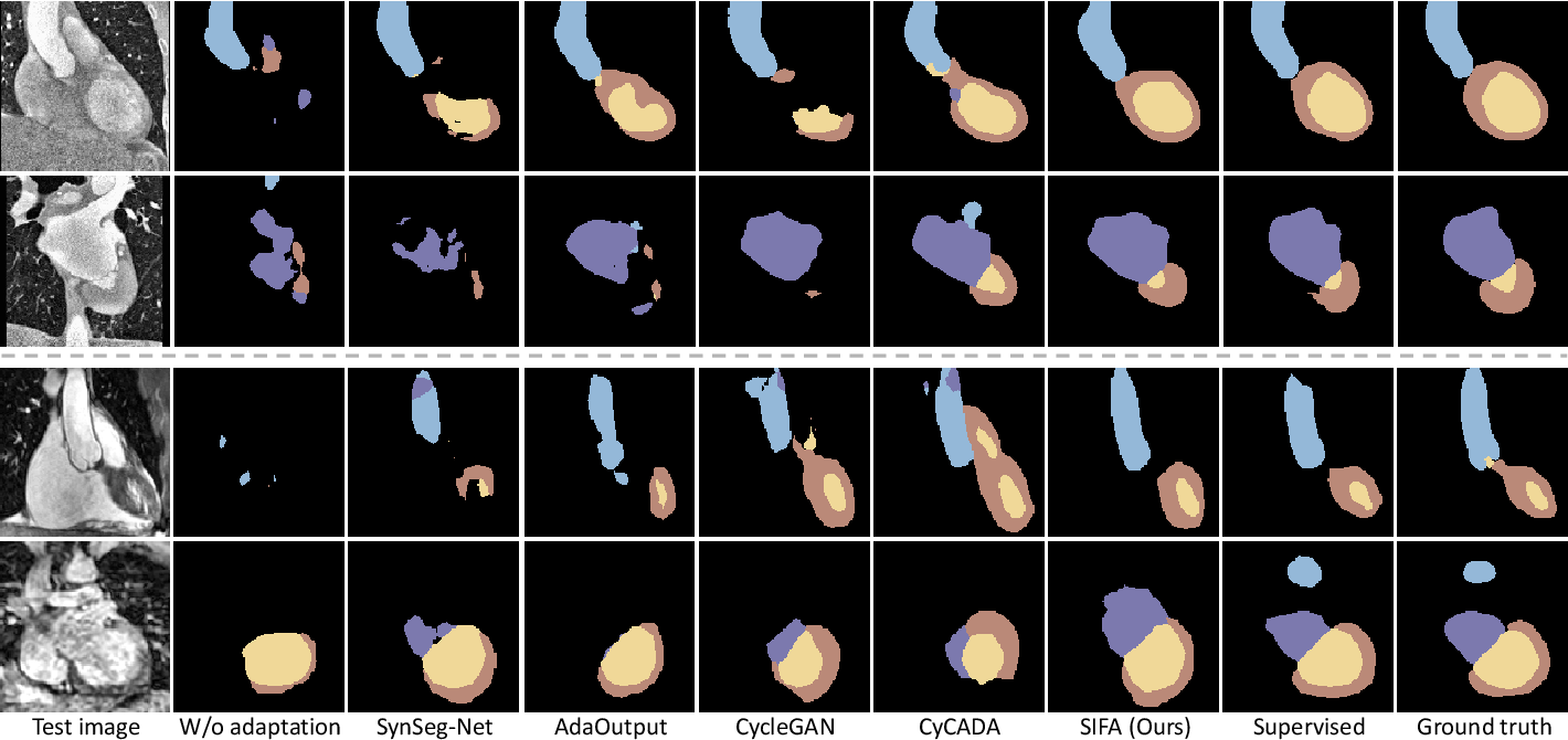 Figure 3 for Unsupervised Bidirectional Cross-Modality Adaptation via Deeply Synergistic Image and Feature Alignment for Medical Image Segmentation