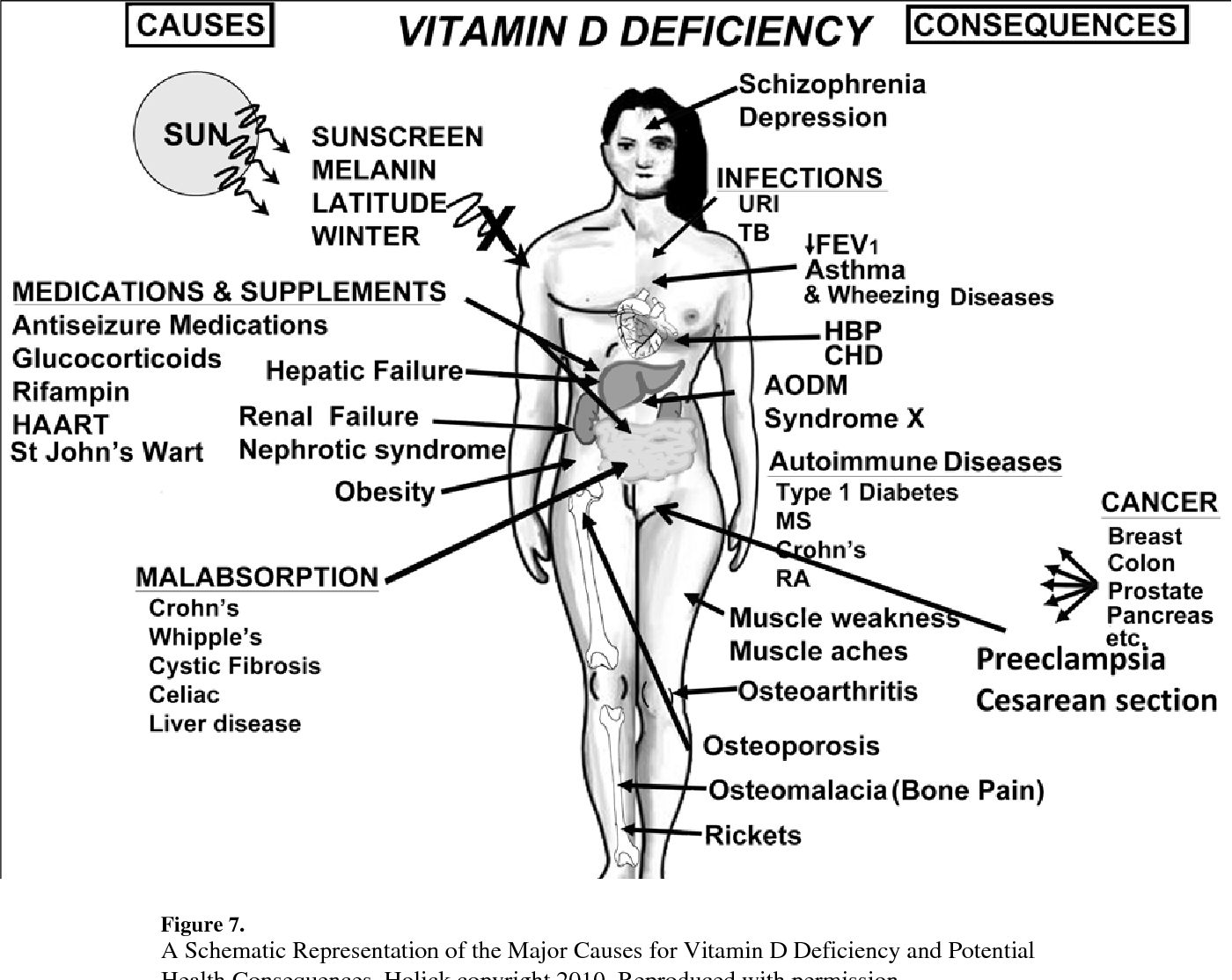 Figure 7 From Vitamin D A D Lightful Solution For Health Semantic Scholar