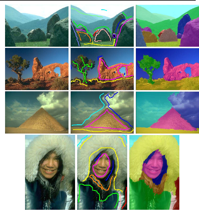 Figure 4 for A New Algorithm for Interactive Structural Image Segmentation