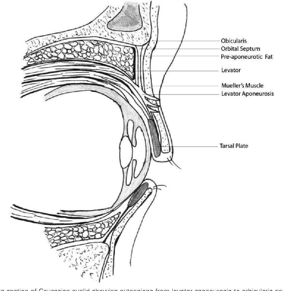 Figure 6 from Asian blepharoplasty. - Semantic Scholar