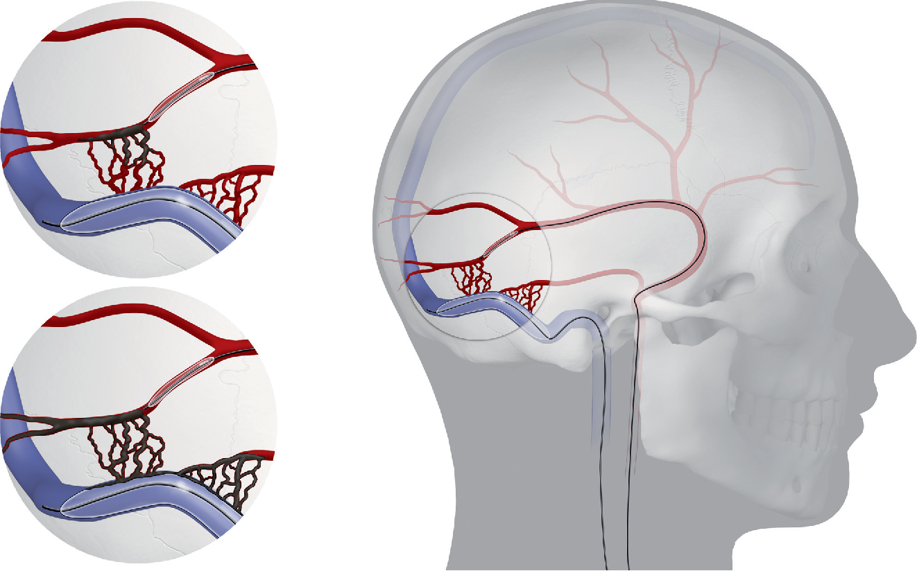 Endovascular Treatment of Dural Arteriovenous Fistulas of the ...