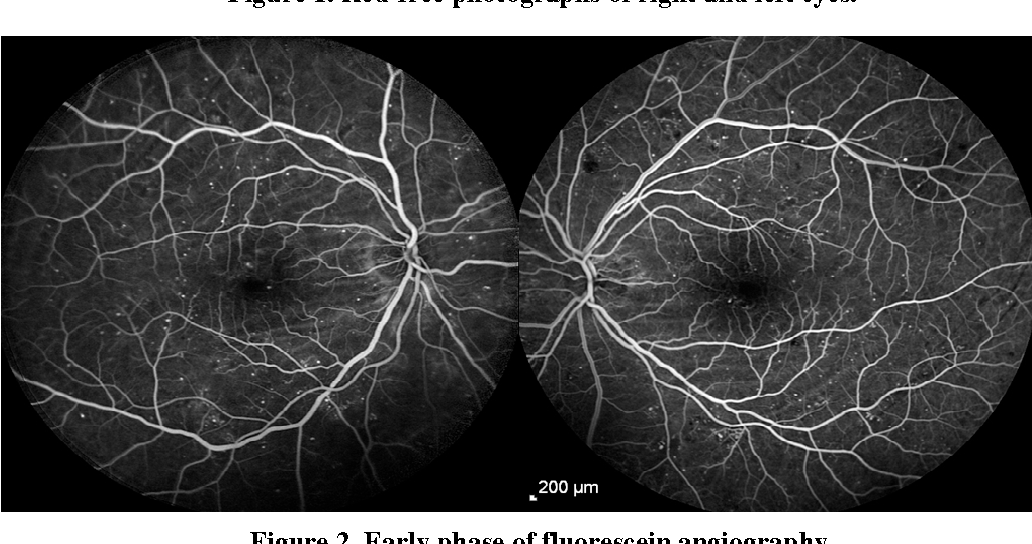Bilateral Choroidal Folds In A Diabetic Patient