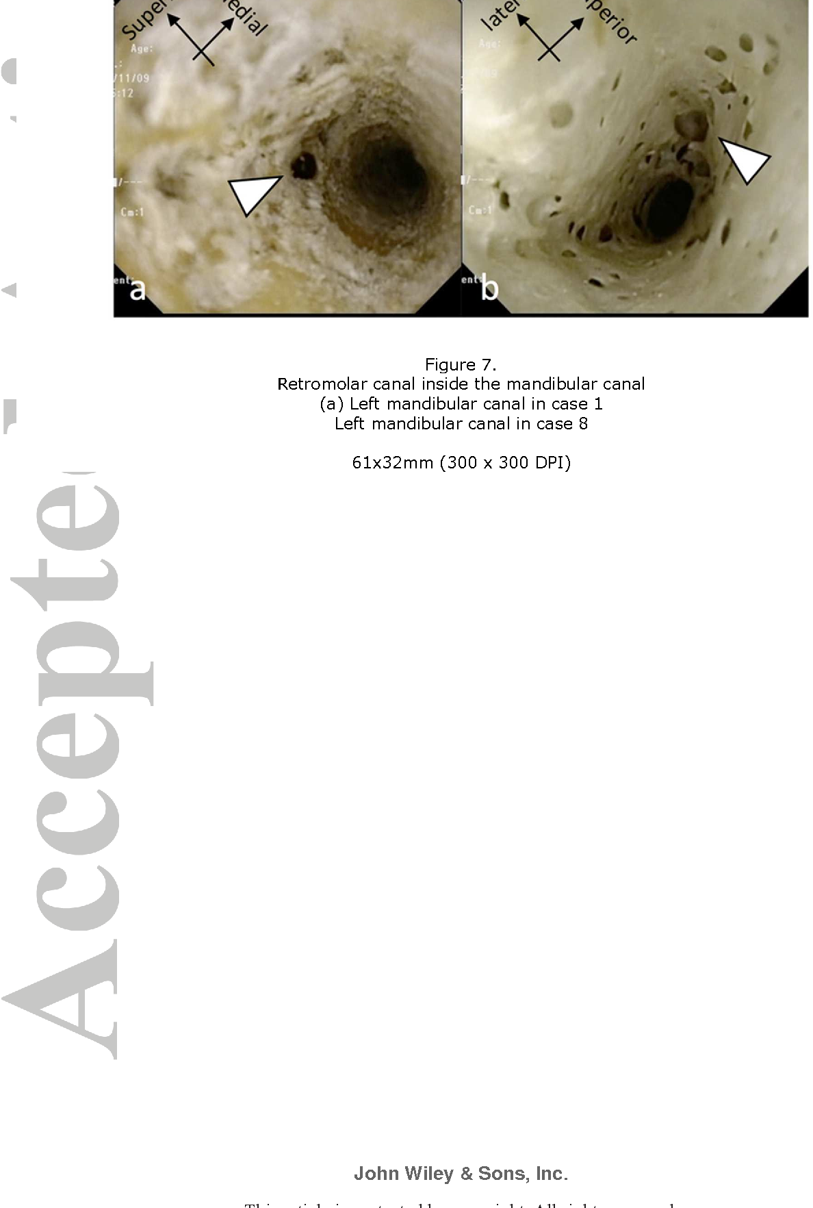 A Novel Method For Observation Of The Mandibular Foramen